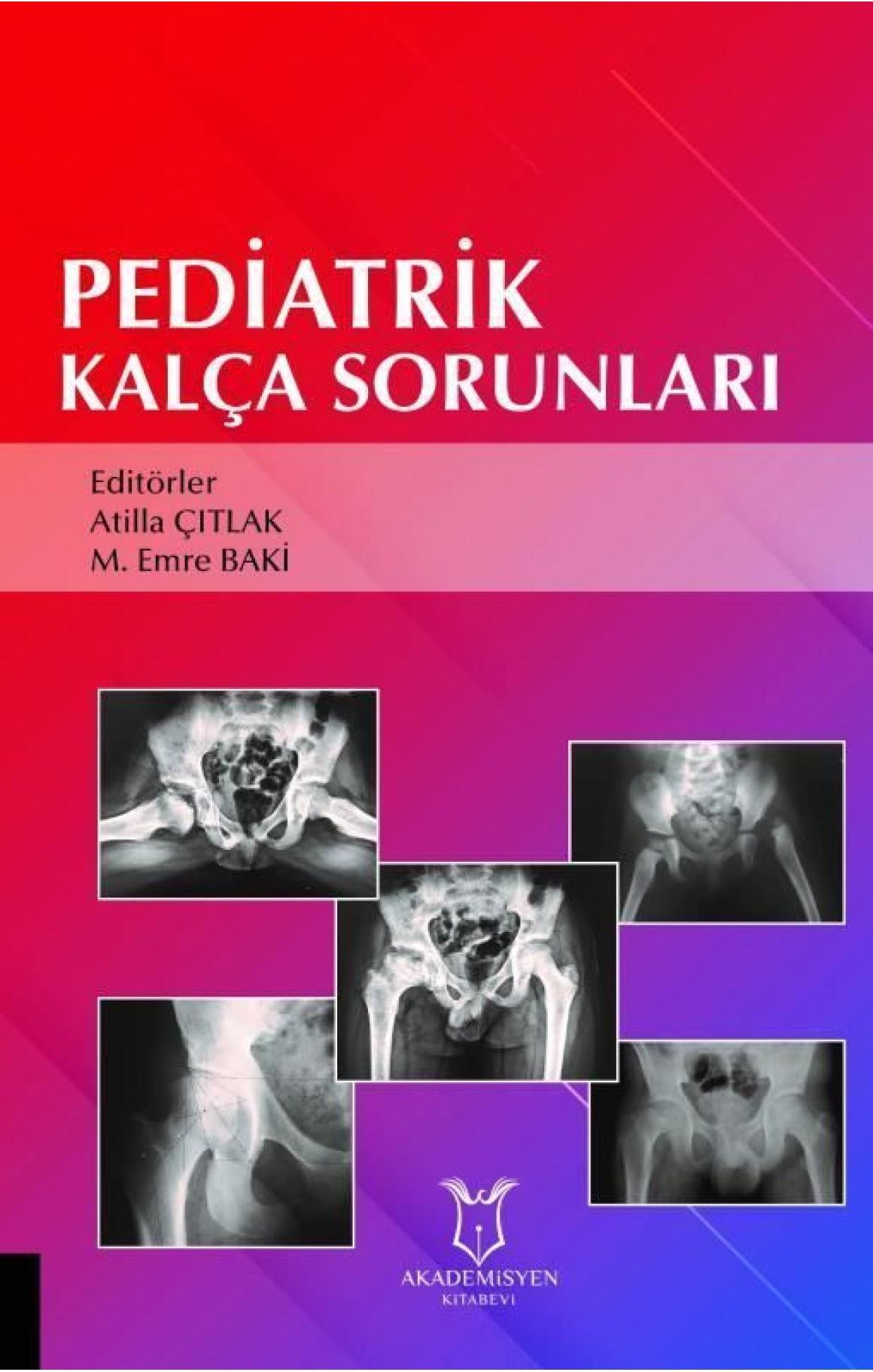 Pediatrik Kalça Sorunları